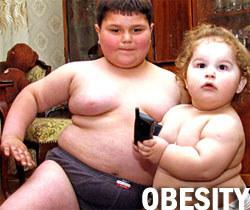 Kanak-kanak-obesiti