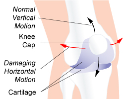 Patellofemoral Syndrome 2