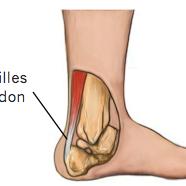 Kecederaan Tendon Achilles