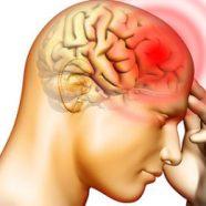 Guna Cara Ini Untuk Kurangkan Kerap Sakit Kepala