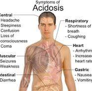 Asidosis Laktik